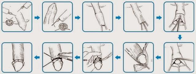 lợi ích của việc cắt bao quy đầu