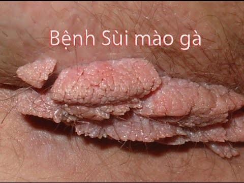 hinh-anh-sui-mao-ga-o-vung-kin-nu-gioi